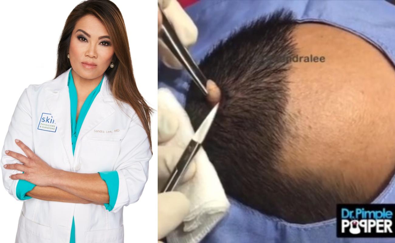 Dr Sandra Lee Berjaya Keluarkan 'Bawang Putih' Dari Kulit Kepala Pesakit